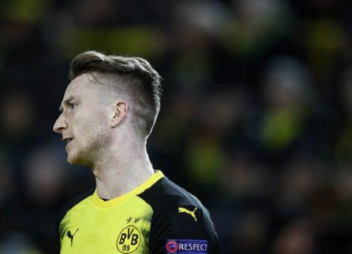 斯托格尔:罗伊斯或因伤缺席周末德甲比赛